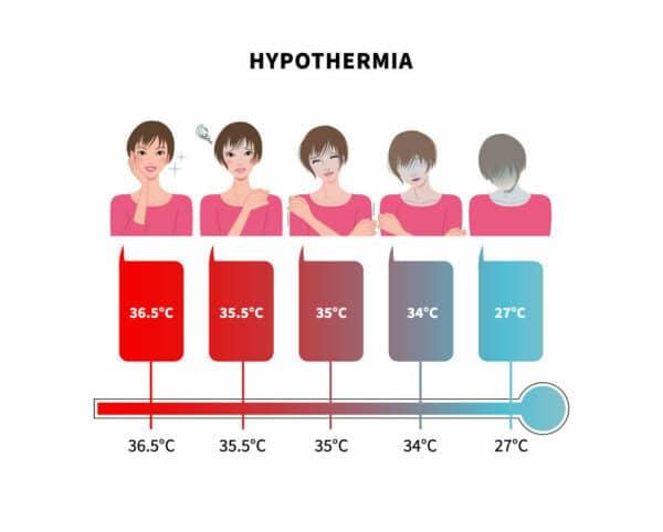 Hypothermia chart